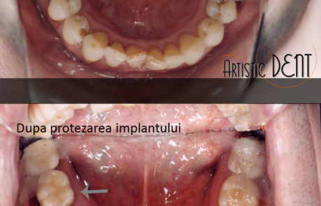 implant-dentar-straumann-1