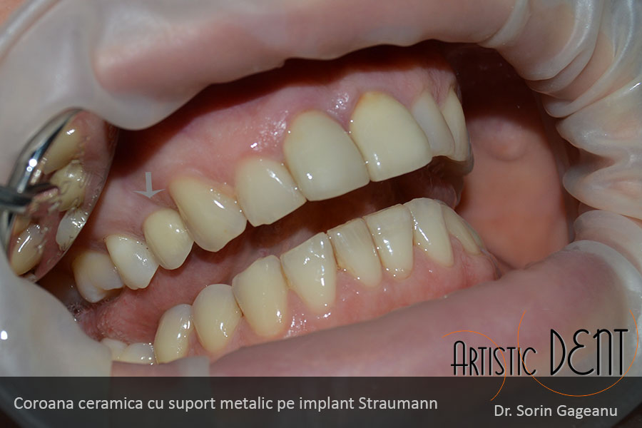 implant-dentar-straumann-nr2